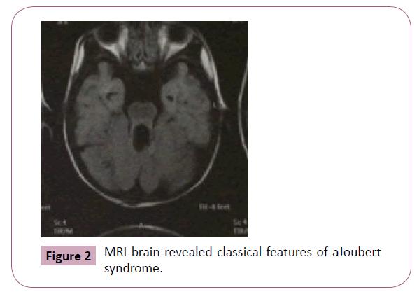 annals-clinical-laboratory-MRI-brain