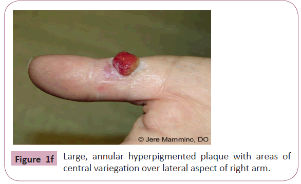 annals-clinical-laboratory-hyperpigmented-plaque
